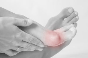What You Need to Know about Painful Bunions