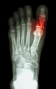 Do You Really Need to See a Doctor for a Broken Toe